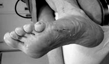 KvaliCare e-læringskursus til SHH om diabetiske fodsår